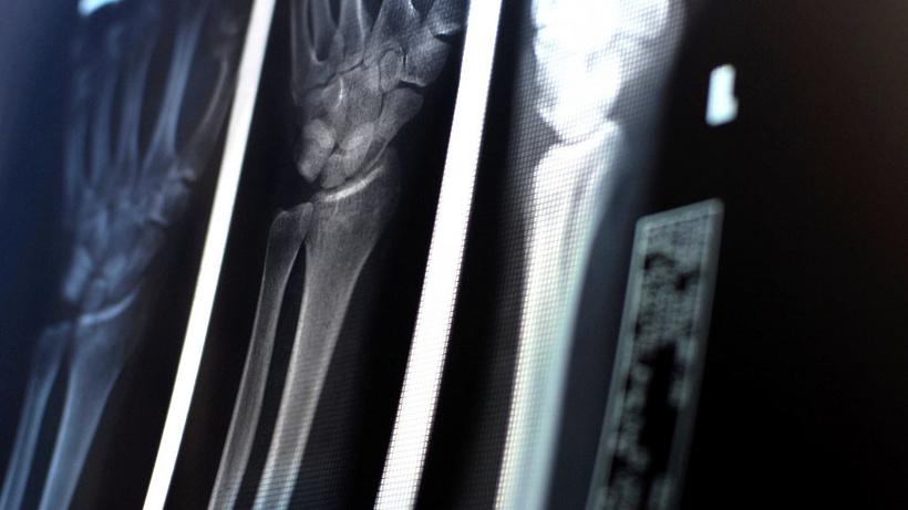 ОНФ обратился в Минздрав Подмосковья для оснащения больницы Коломны рентген‑аппаратом