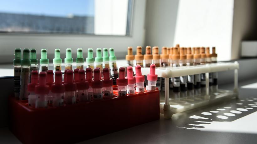 Три новых случая заражения коронавирусом выявили в Красногорске за сутки
