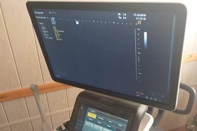 В больницу Лосино‑Петровского поступило новое медицинское оборудование